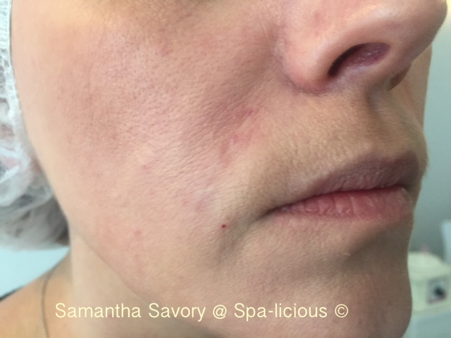 Dermal Fillers | Spa-licious Cosmetic Skin Clinic Gerrards Cross